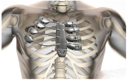 The chest cavity is printed with 3D printing materials.